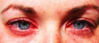 На что может быть аллергия если чешутся глаза