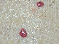 маленькие красные точки на теле