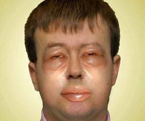 аллергия отек лица фото