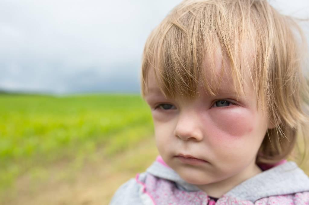 аллергия на лице фото