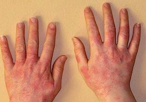 аллергия на помидоры фото