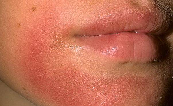 Аллергический дерматит - как его лечить и как он выглядит?