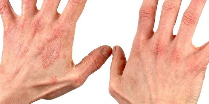 Аллергический дерматит на коже рук