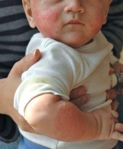 Аллергия на белок молока у ребенка