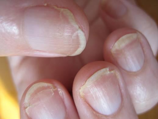 Аллергия на гель лак расслаивание ногтя