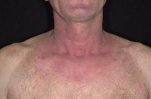 allergicheskii-dermatit_125-a-foto