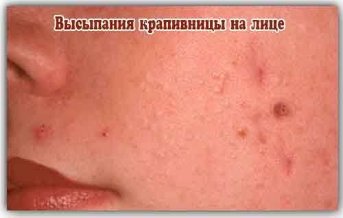 Крапивная сыпь на лице