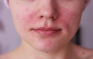 аллергия на воду