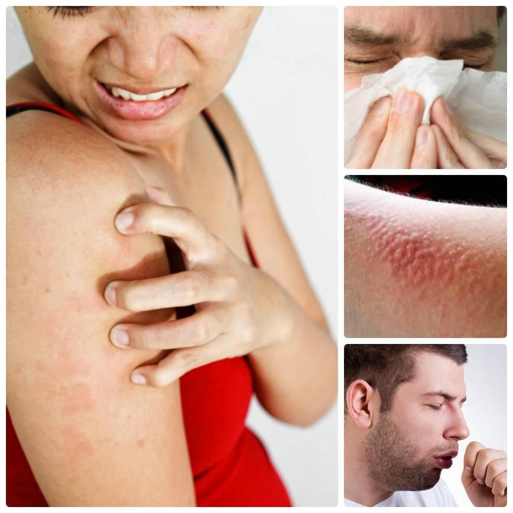 Какие симптомы аллергии на воду