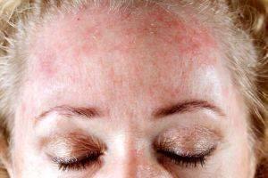 симптомы и признаки аллергии на сигареты