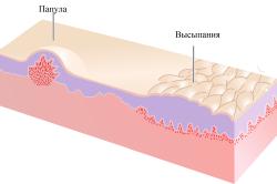 Папула - первичное аллергическое высыпание на коже