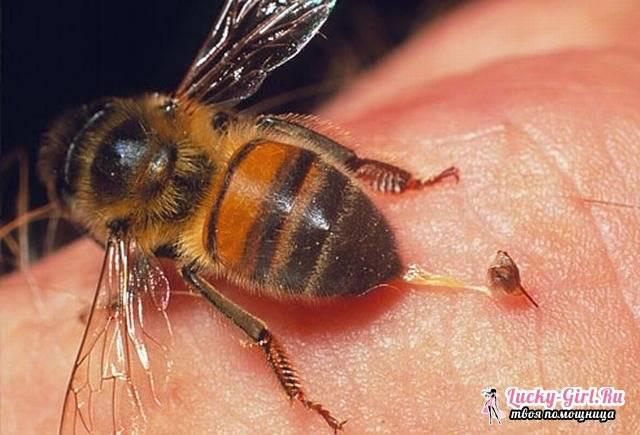 После укуса пчелы кружится голова