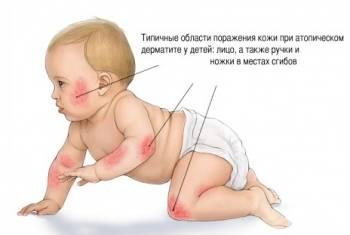 Аллергическая сыпь у детей: фото высыпаний при атопическом дерматите