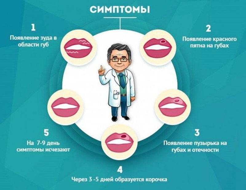 Симптомы развития герпеса на губах