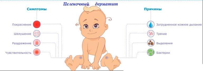 младенец и пелёночный дерматит