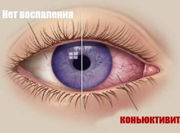 Почему чешутся веки глаз