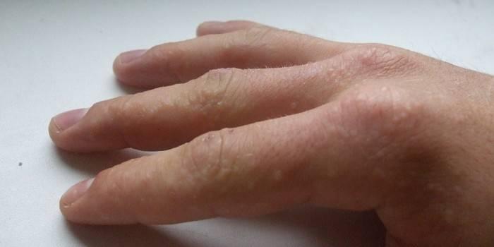 Кожные заболевания пальцев руки