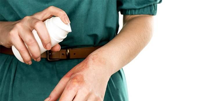 Девушка наносит Пантенол-спрей на обожженную руку