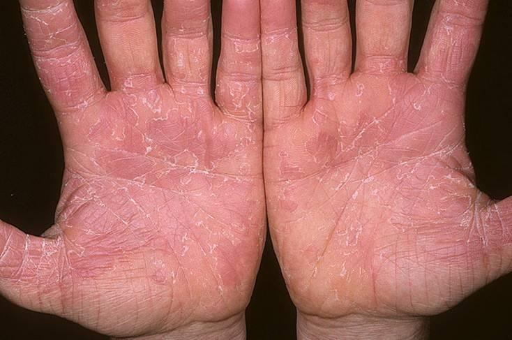 Эксфолиативный дерматит у взрослых — Аллергия