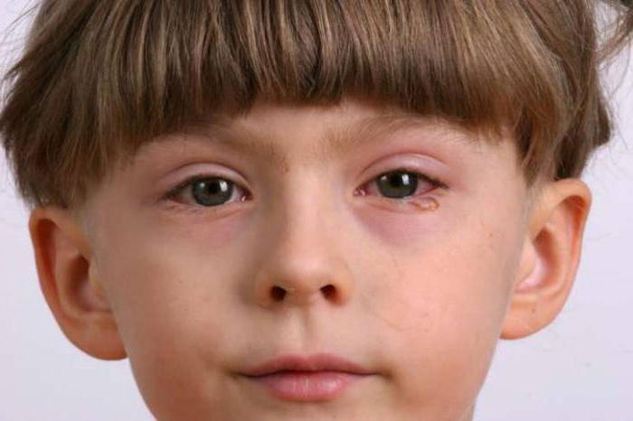 капли для глаз при аллергии на амброзию