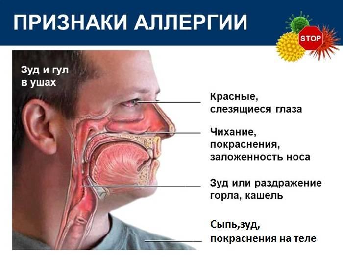 Признаки аллергии