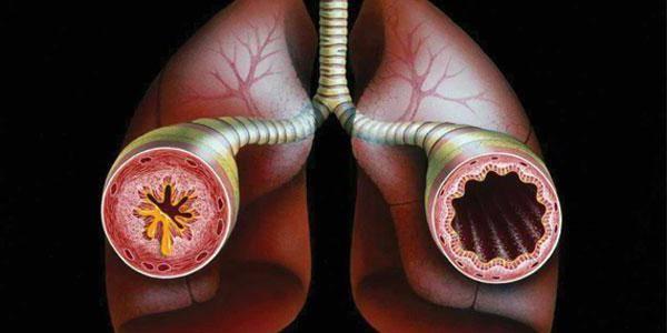 аллергическая астма лечение