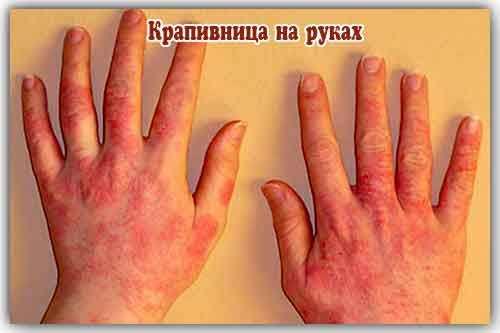 Симптомы крапивной сыпи у взрослых (на руках)