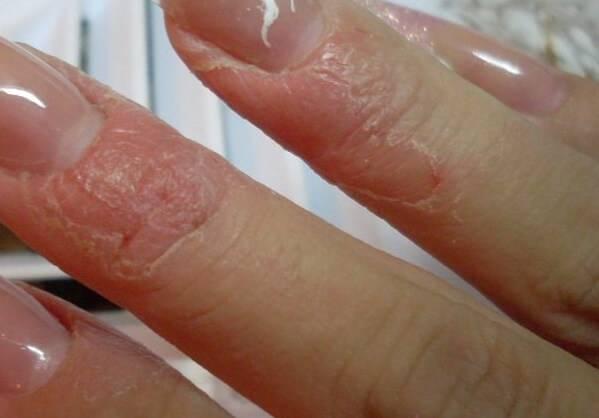 Allergiya-na-gel