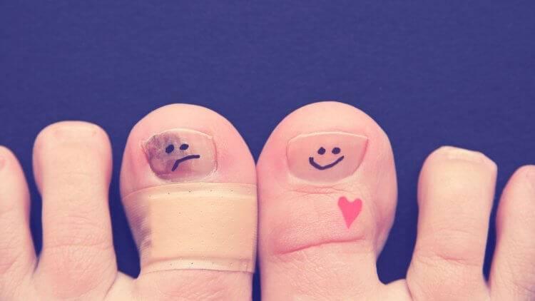 Чем красить ногти при аллергии