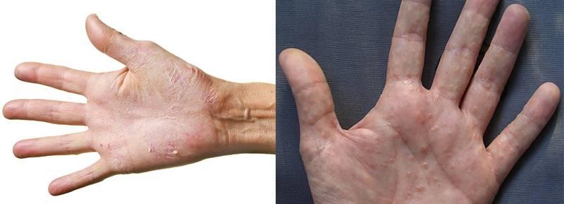 аллергия, симптомы, проявления, гель-лак