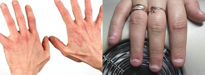 аллергия на шеллак, гель-лак кожная