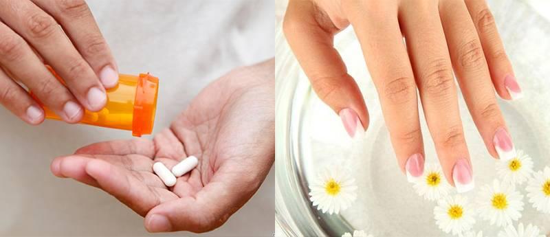 лечение аллергии на гель-лак