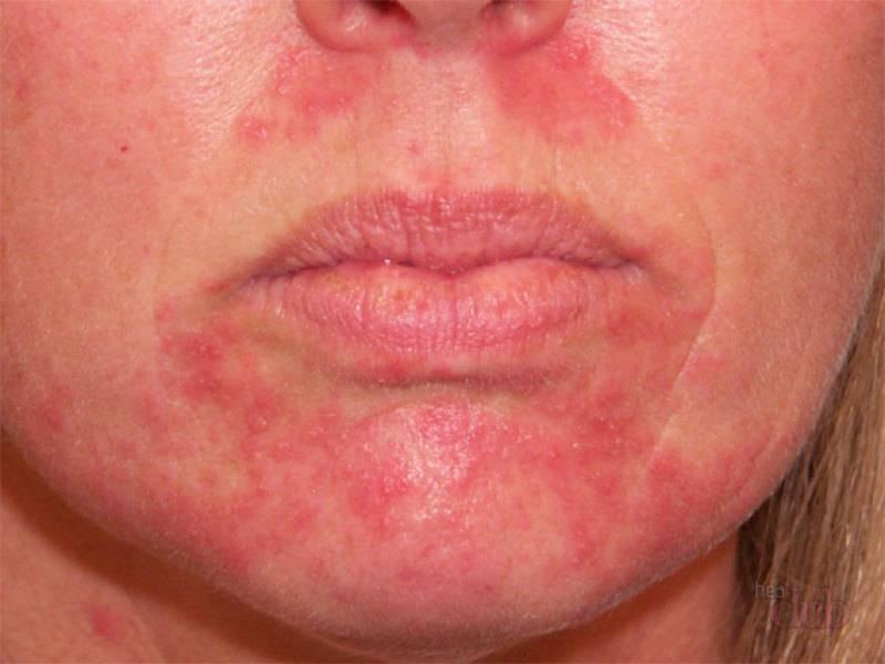 Раздражение может проявляться по разному - в виде сыпи. пятен или шелушения