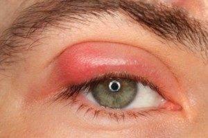 Отек глаз при аллергии