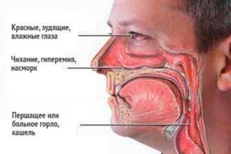 Основные симптомы аллергии