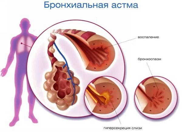 симптомы бронхиальной асмы у детей