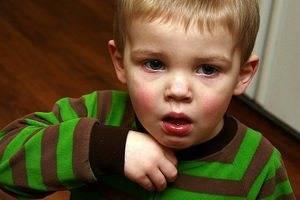 Признаки и симптомы астмы у детей