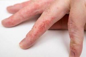 Кожа чешется между пальцами рук