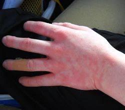 Холодовая уртикария на руке