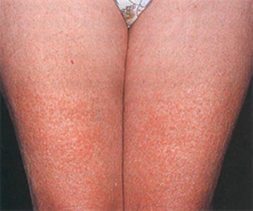 allergija-na-holod-na-lice-foto_1_1