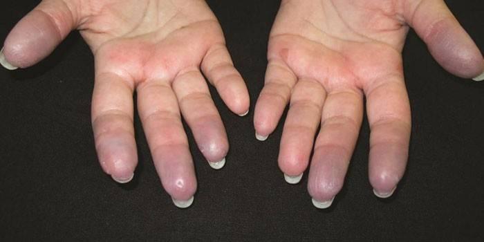 Аллергия на холод на пальцах рук