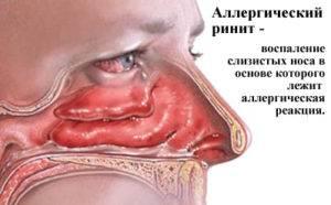 Аллергия на моющие средства