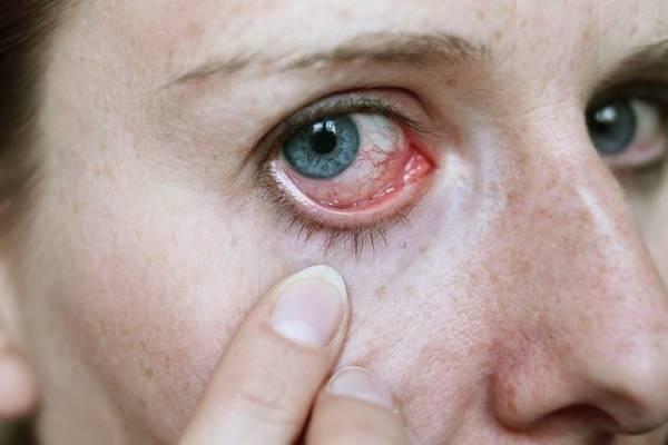 Причины покраснения и зуда глаз