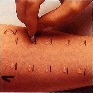 Тестирование на коже