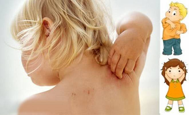 аллергический зуд у детей