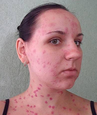Высыпания на коже не аллергия что это такое
