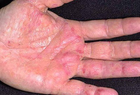 крем от аллергии на коже у взрослых гормональные