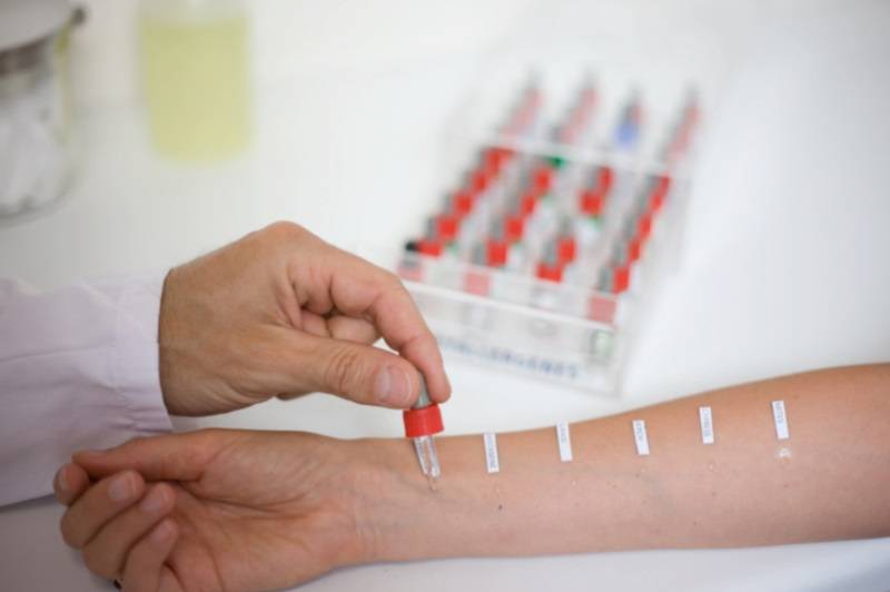 Проведение аллергопроб