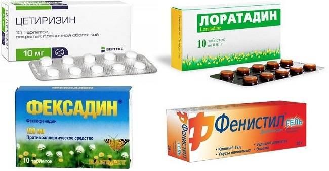 allergiya-na-krasku-dlya-volos-kak-proyavlyaetsya-i-chto-delat9