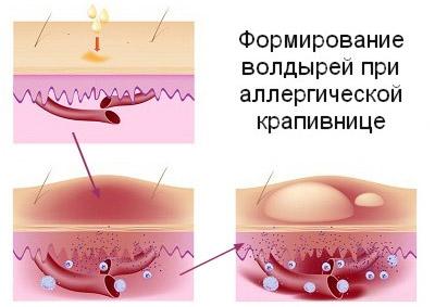 На что может быть аллергия если есть крапивница и отек квинке